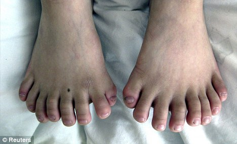 a_boy_with_15_fingers_and_16_toes_1